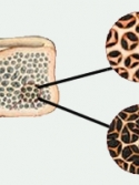 Illustration of health bone and bone with osteoporosis